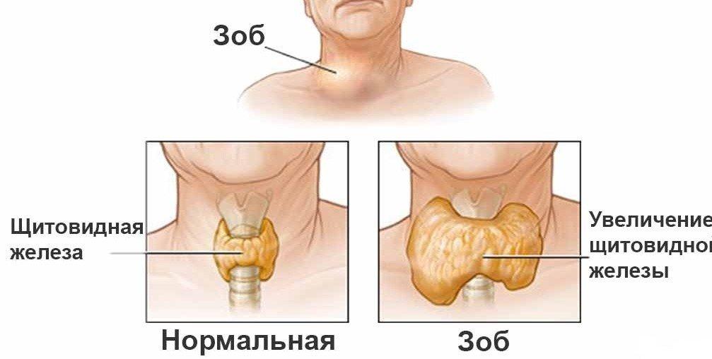 Симптомы узлового зоба