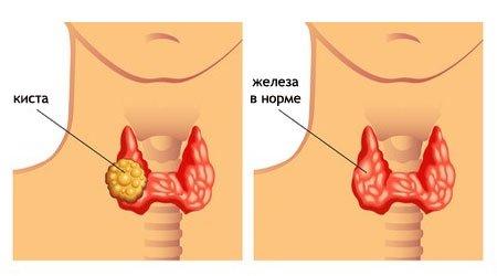 Что такое киста щитовидной железы