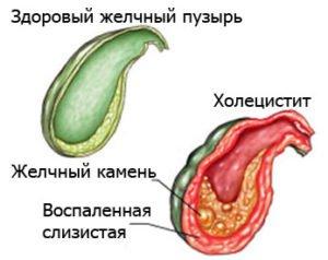 Что такое холецистит