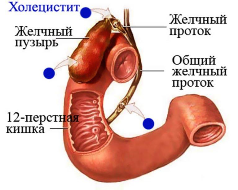 Симптомы и лечение желчного пузыря в домашних  939