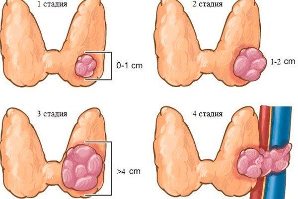 Узлы на щитовидке