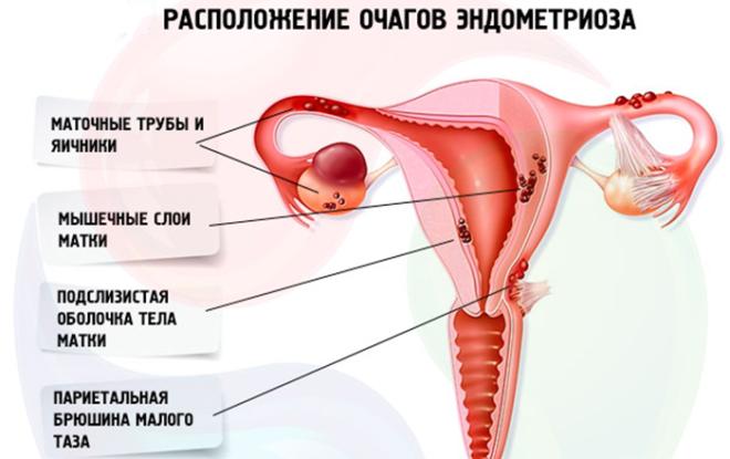 гиперплазия эндометрия матки