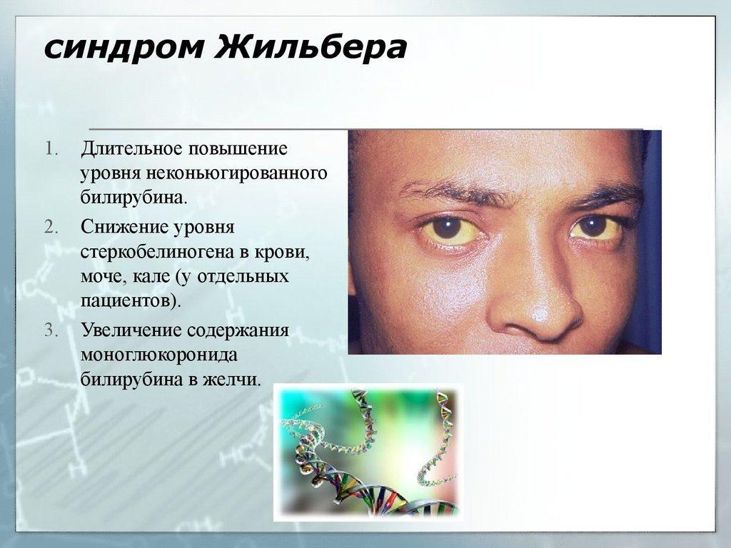 синдром жильбера фото