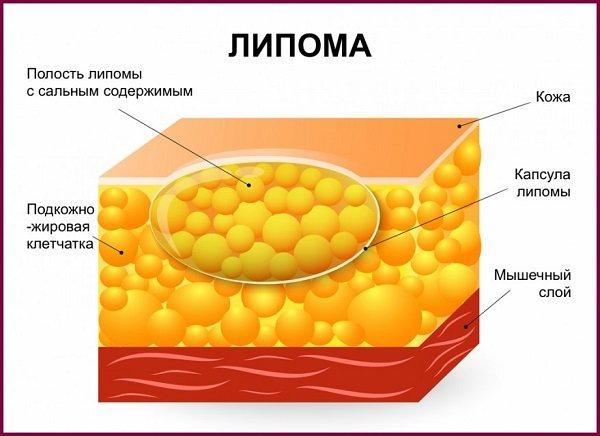 Что такое липома