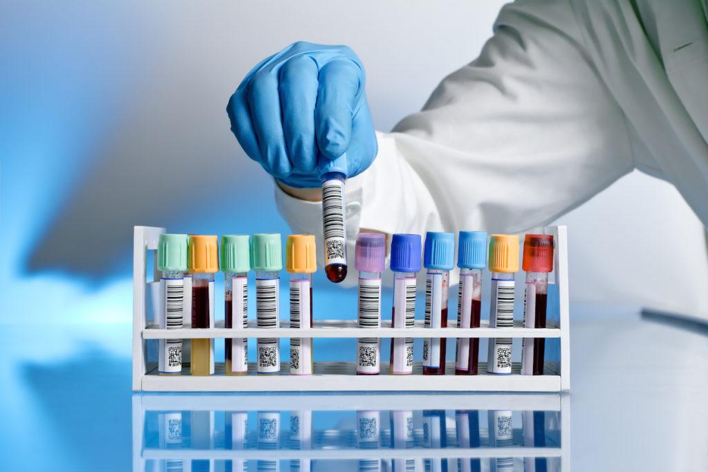 Анализ крови на онкомаркеры стоимость