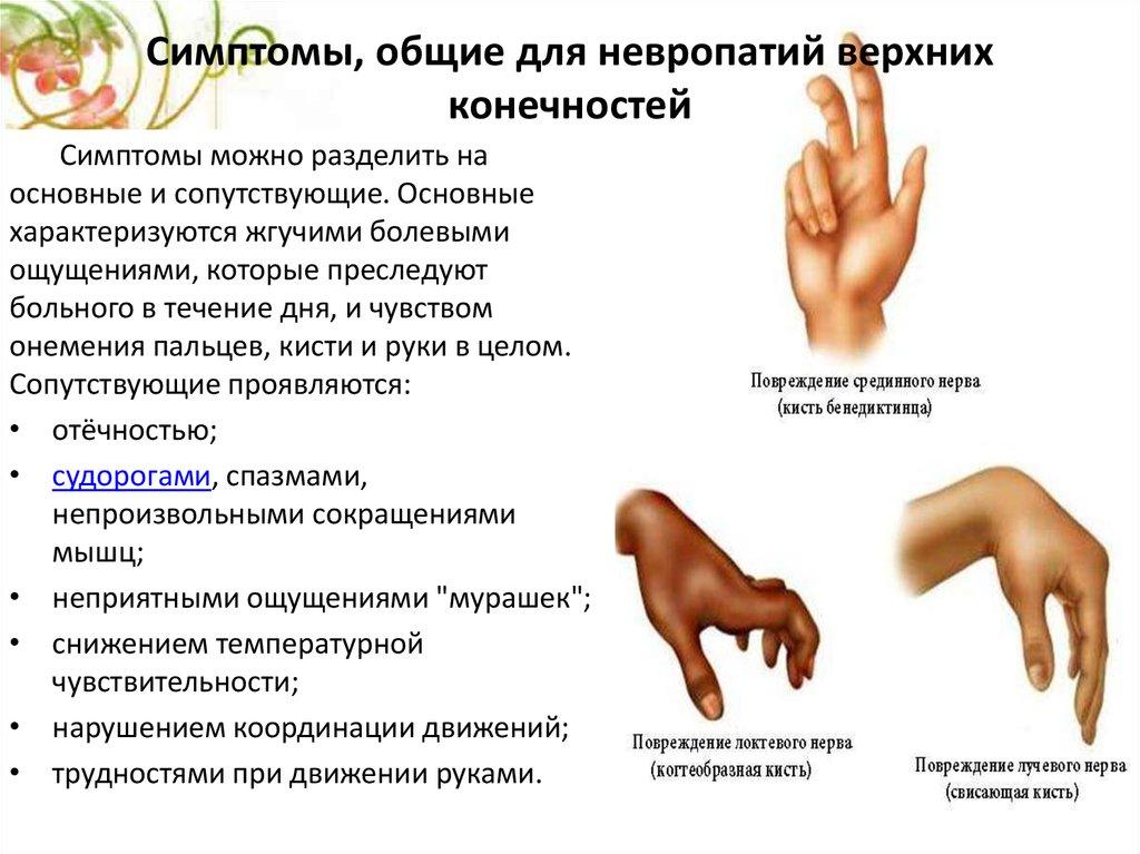 Полинейропатия нижних конечностей что это
