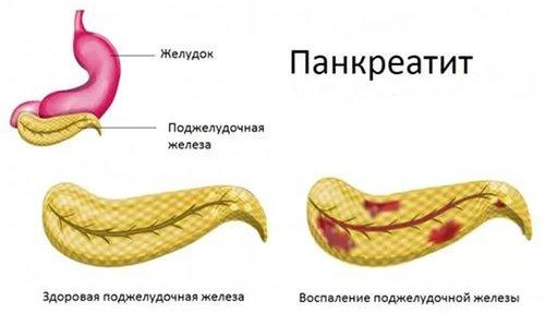 панкреатит у мужчин