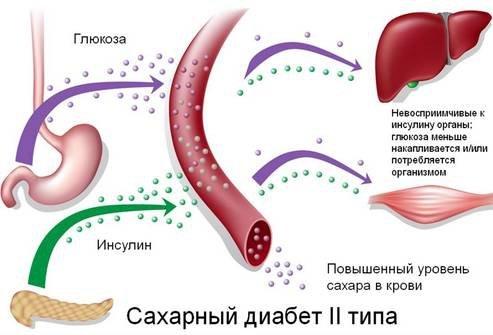 Сахарный диабет 2 типа что это такое симптомы лечение