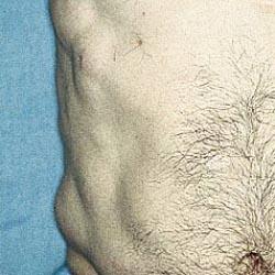 симптомы липоматоза