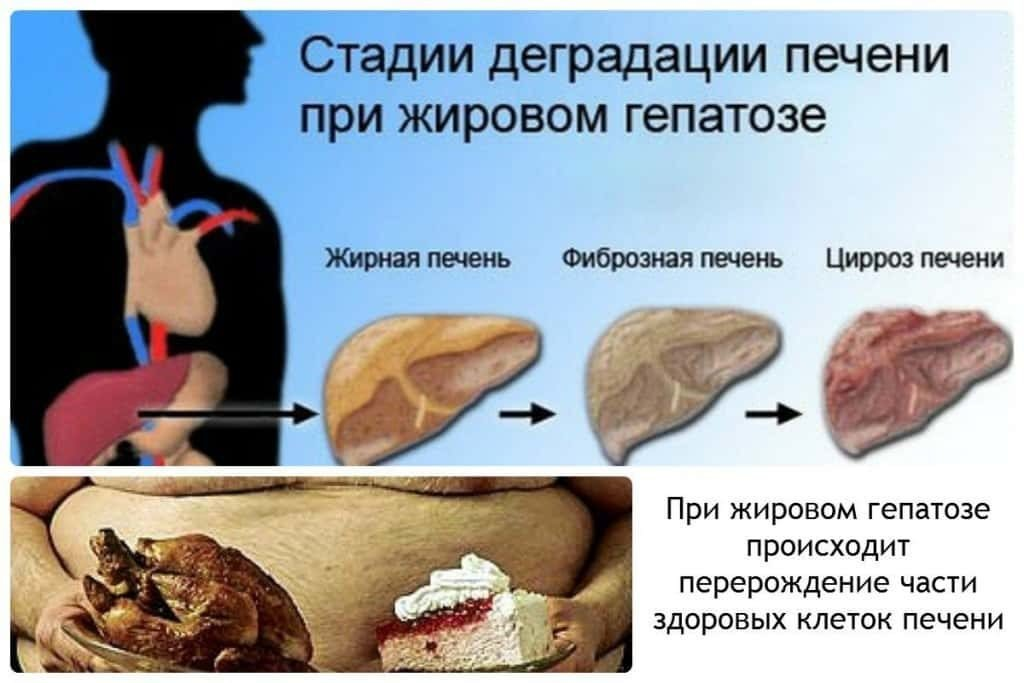 Что такое жировой гепатоз печени