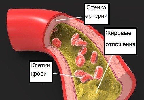 что такое триглицериды в крови